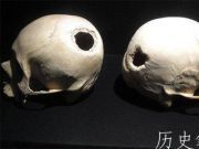 古人类真的能实施开颅手术吗?